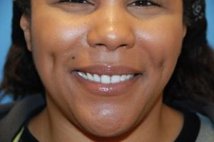 Cheek Piercing (Dimple Piercing): Aftercare, Jewelry ...