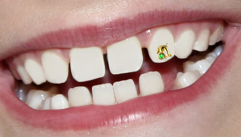 Tooth Piercing Jewelry Cost Complications Pictures Body