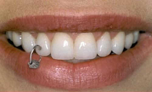 Tooth piercing: Jewelry, Cost, Complications, Pictures | Body ...