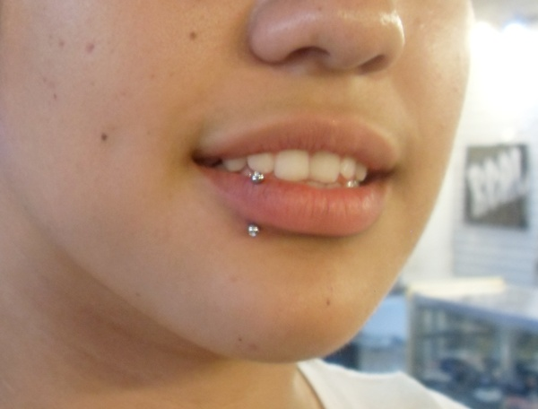 labret piercing scar - photo #28